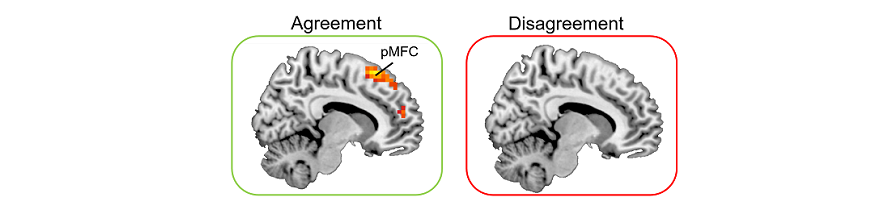 Image of brain scans which shows area' 'pMFC' light up on 'agreement' condition, but not light up on 'disagreement' condition