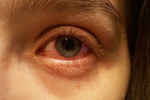 Close-up of an eye affected by glaucoma