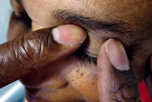 Glaucoma drug proven to reduce risk of vision loss