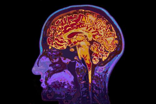 Antipsychotic prescriptions rising much faster than psychosis rates