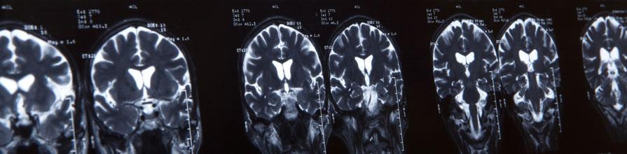 MRI Brian Scan