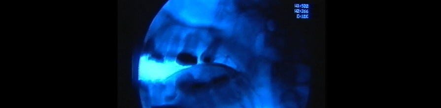 X ray of a woman's jaw when speaking Zulu language