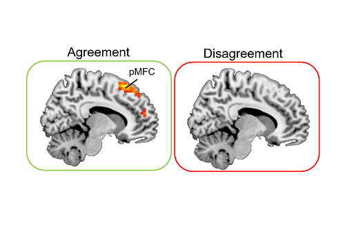 Image of brain scans showing the area 'pmfc' light up on 'agreement' condition and not light up on 'disagreement' condition